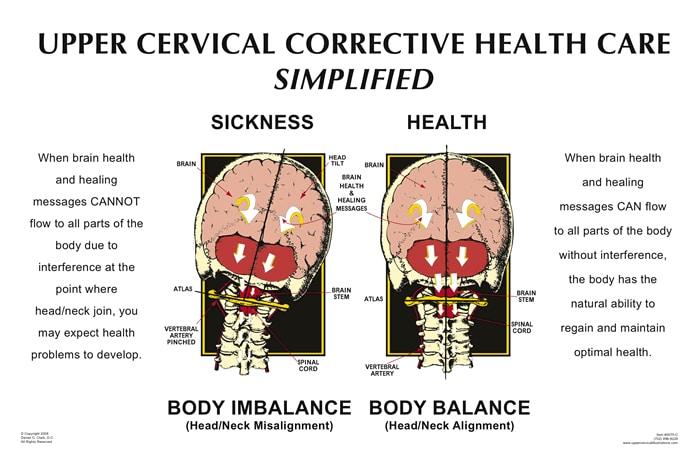 Chiropractic Westlake Village CA Upper Cervical